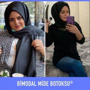 bimodal-mide-botoksu-once-sonra-10