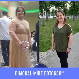 bimodal-mide-botoksu-once-sonra-2