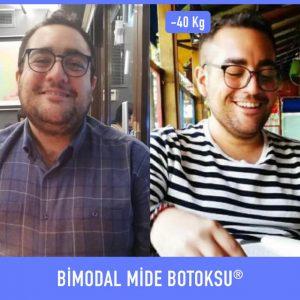 bimodal-mide-botoksu-once-sonra-3