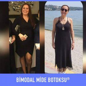 bimodal-mide-botoksu-once-sonra