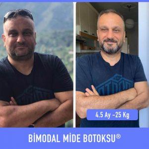 bimodal-mide-botoksu-once-sonra-4