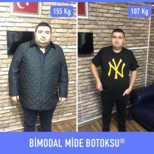 bimodal-mide-botoksu-once-sonra-5