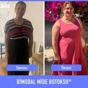 bimodal-mide-botoksu-once-sonra-7