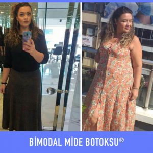 bimodal-mide-botoksu-once-sonra-8
