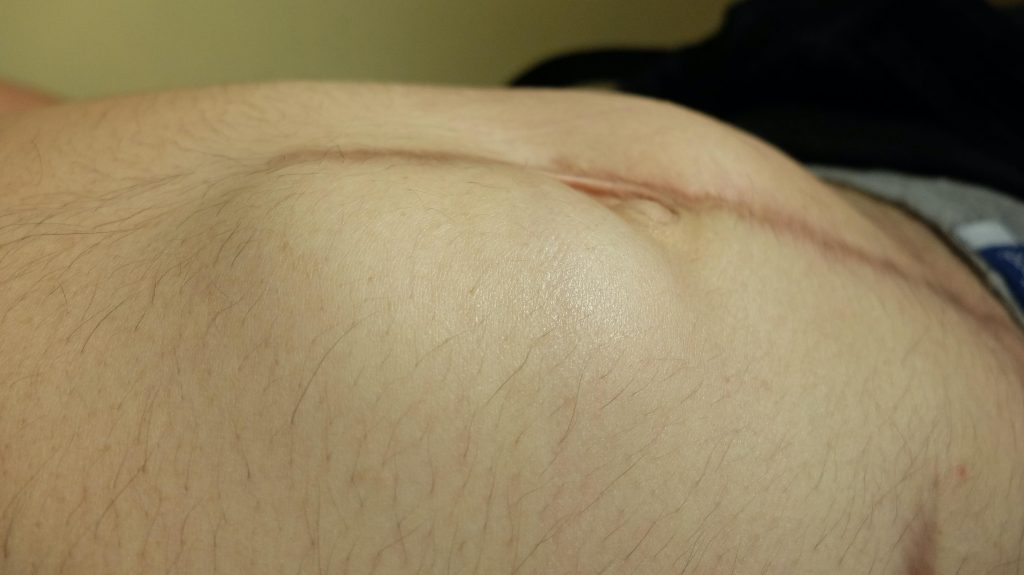 incision site hernia